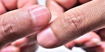 پوستههای اطراف ناخن  نشانه چیست؟