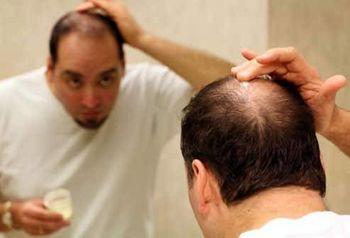شیوه جدید و کار آمد علمی برای ریز ش مو ودرمان کچلی