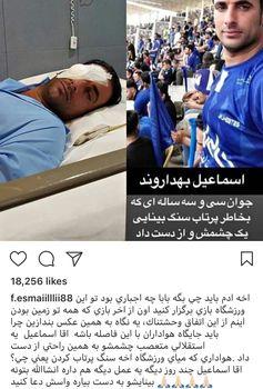 هواداری که در بازی استقلال نابینا شد+عکس