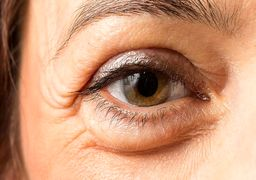 هشدار یک بیماری با پف کردن چشم ها