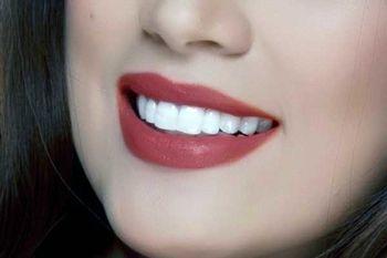 ترفندهایی برای داشتن لبخند زیبا