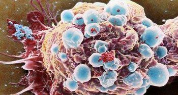 تراشه ای برای شناسایی زودهنگام سرطان
