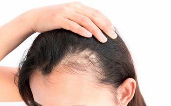 8 پیام سلامت از مو