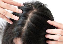آشنایی با علل ریزش مو در زنان