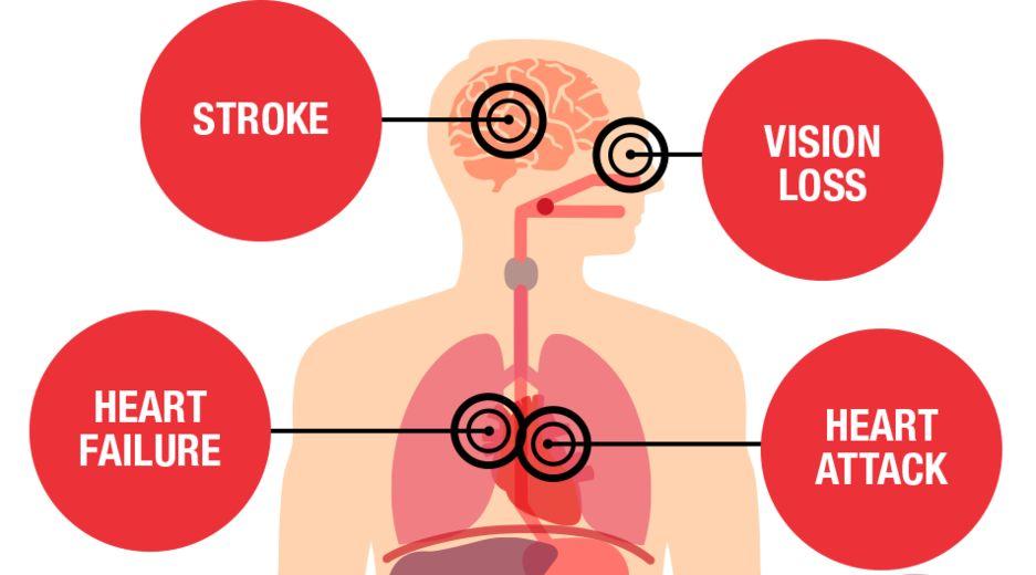 سه علامت ساده در پاها که نشان دهنده فشار خون خطرناک است