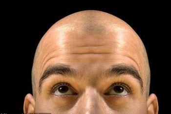 ابداع روش جدید برای جلوگیری از ریزش مو