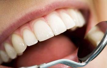 دندان های تمیزتر به معنای قلب سالم تر