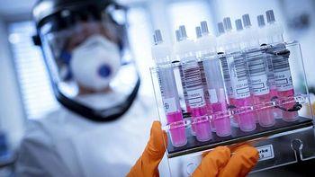 تولید یک میلیون واکسن کرونا در آکسفورد همزمان با آزمایشهای اولیه