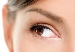 مزایای (جراحی پلک) بلفاروپلاستی برای پف زیر چشم و افتادگی پلک