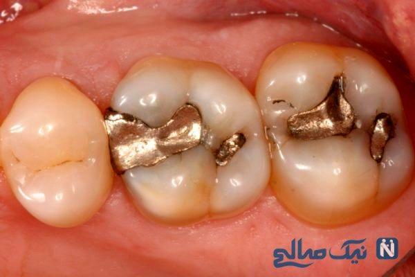 راه درمان پوسیدگی دندان در خانه