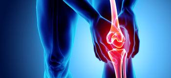 درد ناحیه مفاصل؛ نشانهای که باید آن را جدی بگیرید